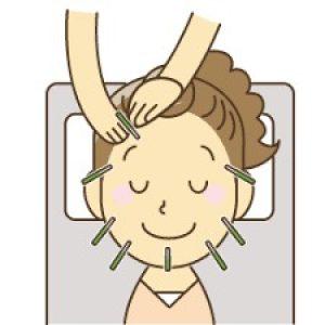 フェイスラインの劇的変化!よしゆき鍼灸院のグアシャ美容鍼 体験会