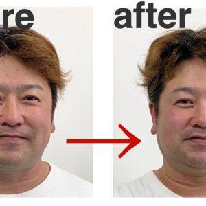よしゆき鍼灸院の美容鍼を受けに、芸人の中川貴志さんがやって来た!
